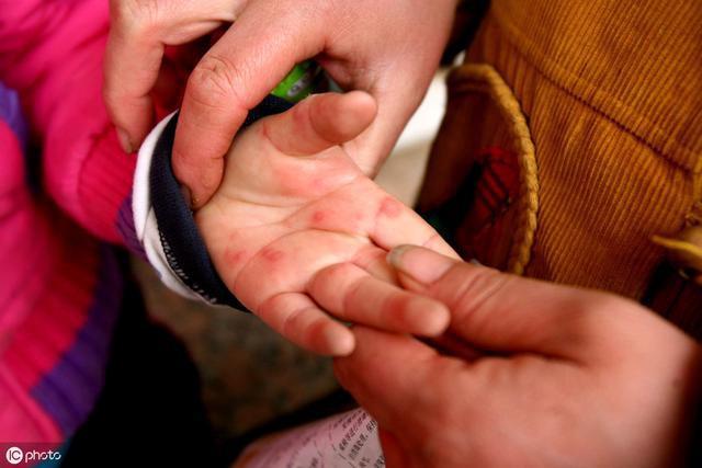 """家长注意!手足口病又到高发期!疾病传播的竟然是""""哄娃神器"""""""